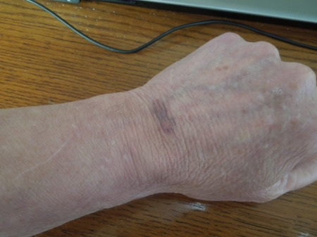 My Bruised Left Wrist