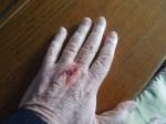 My Poor Hand